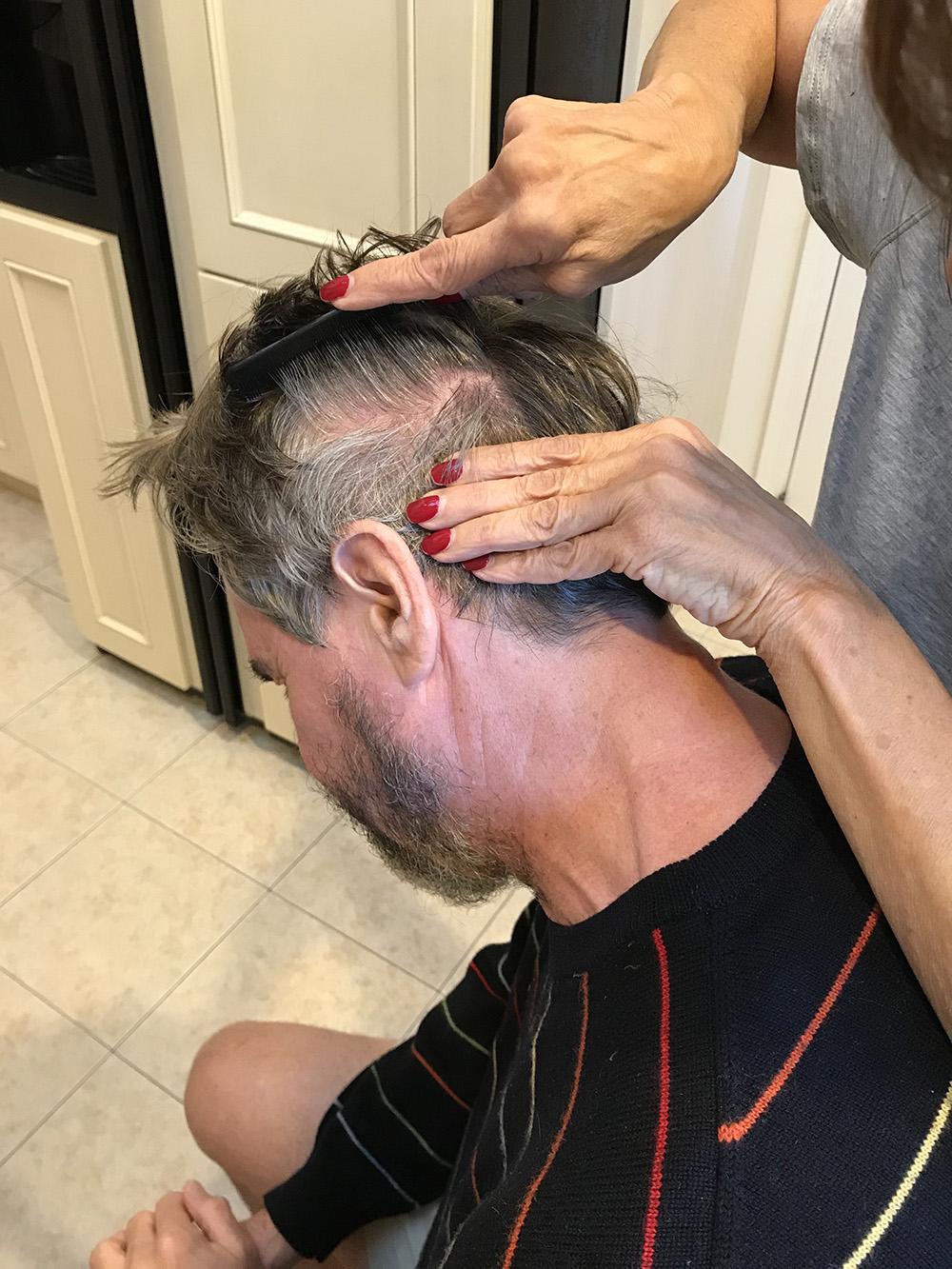 Lice Treatment in Albuquerque, NM
