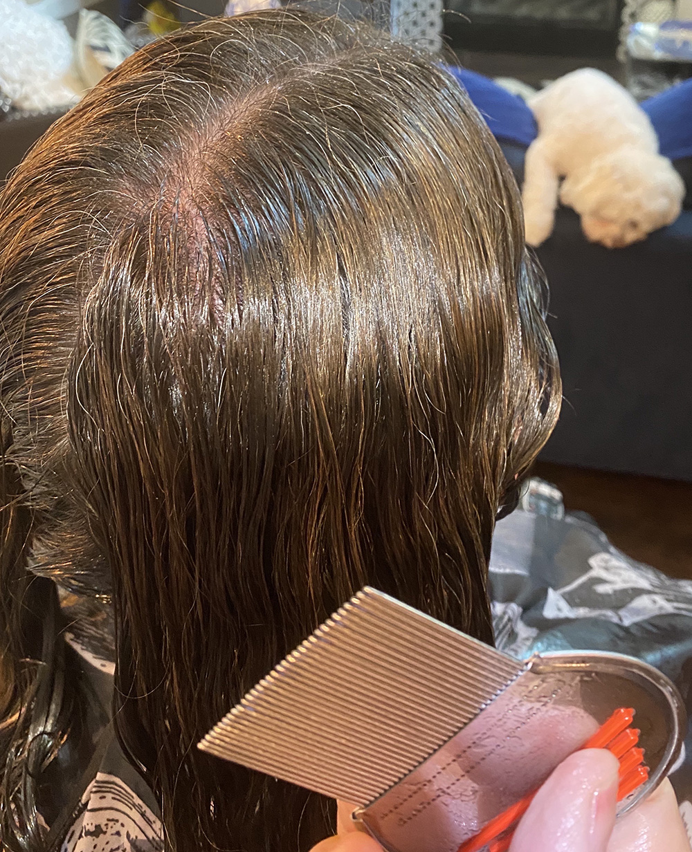 Lice Treatment in Austin, TX