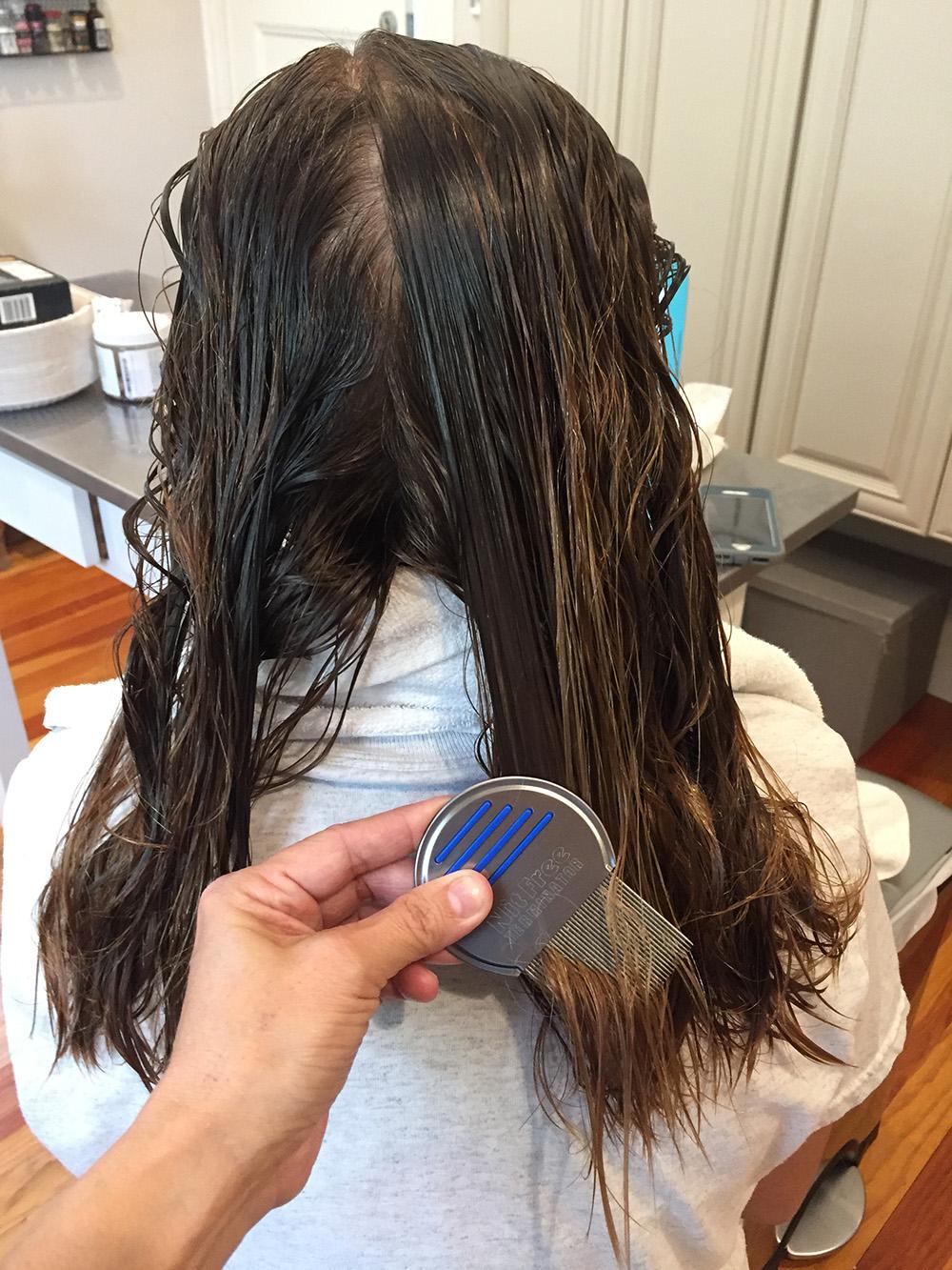 Lice Treatment in Boston, MA
