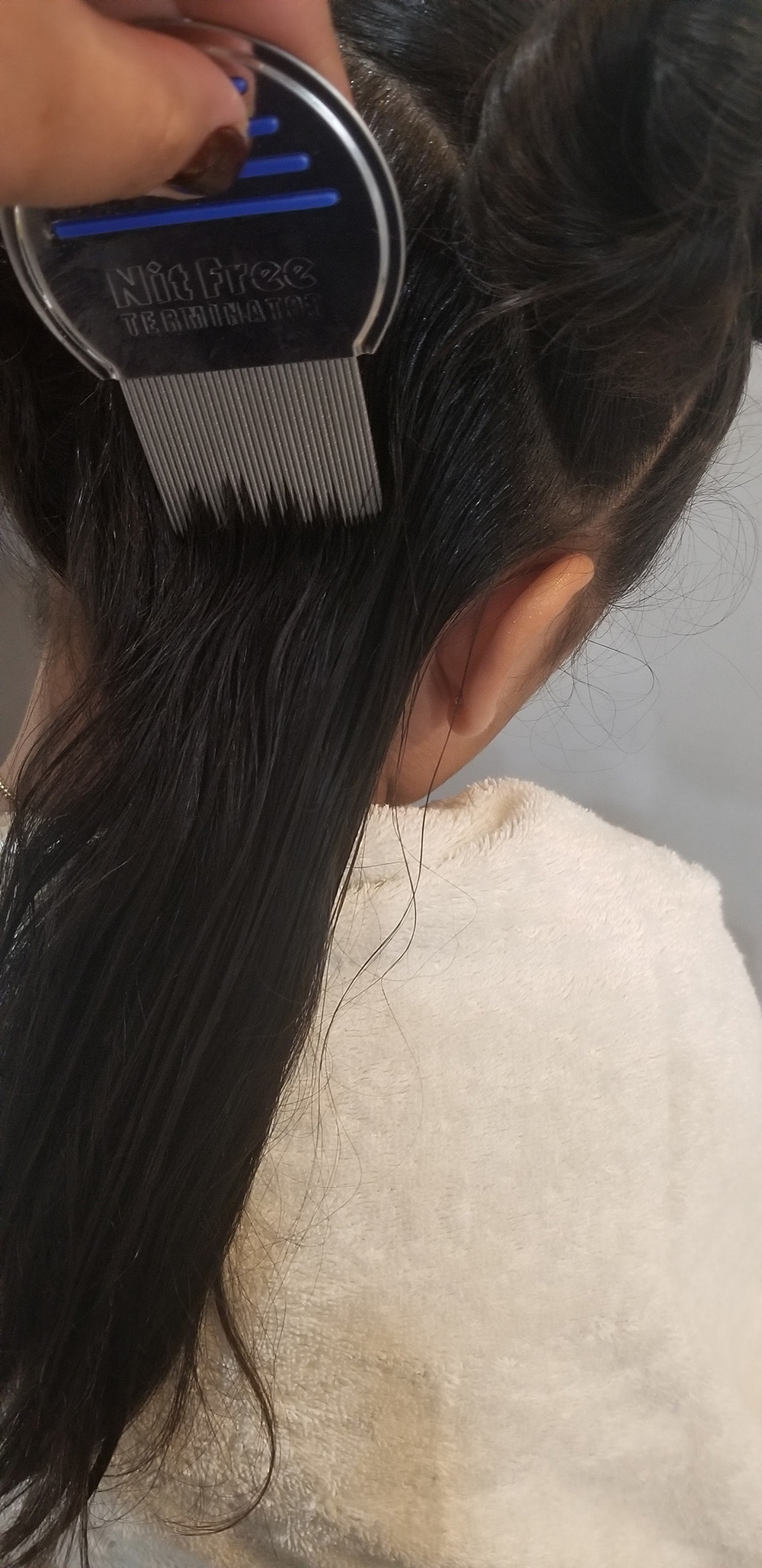 Lice Treatment in Cambridge and Brookline, MA