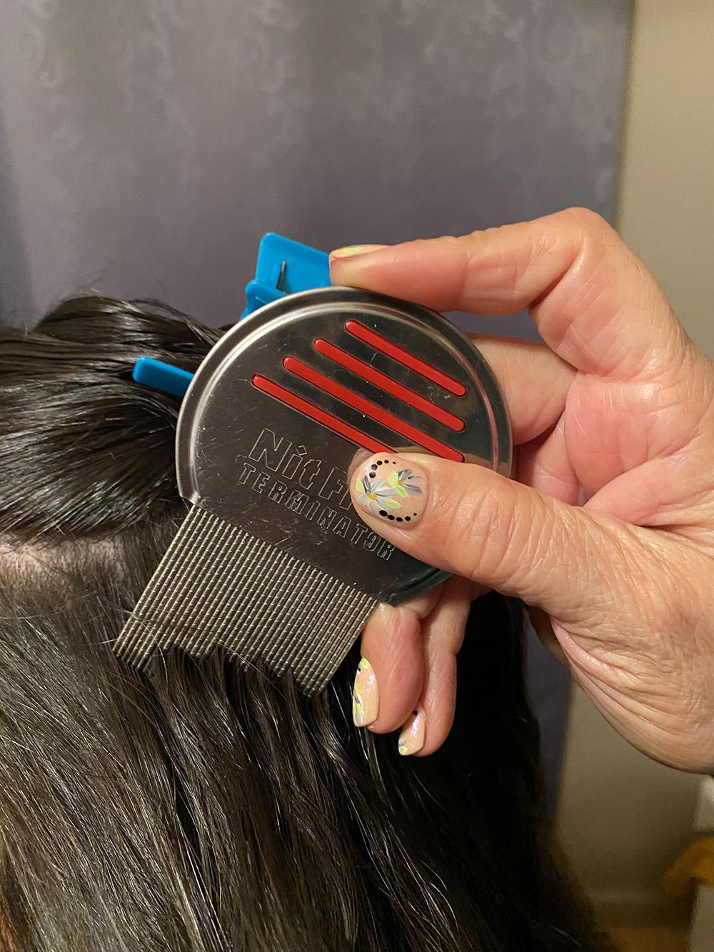Lice Treatment in Clovis, CA