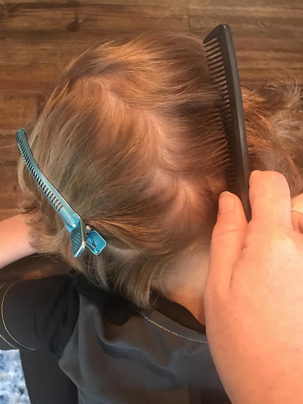 Lice Treatment in Columbus, Ohio