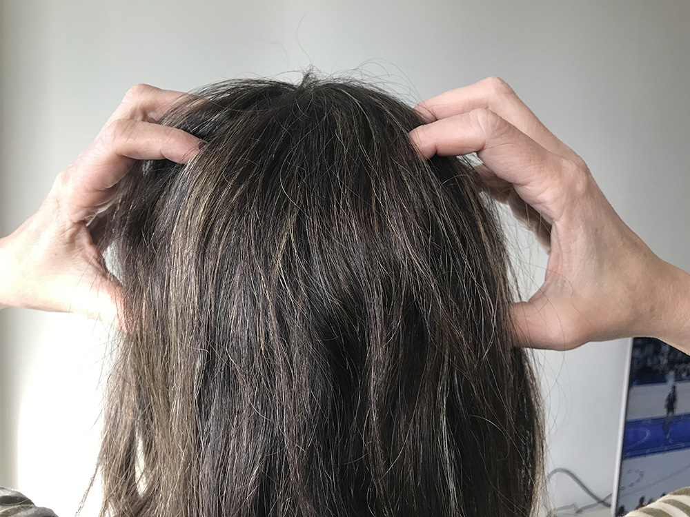Lice Treatment in Des Plaines and Glenview, IL
