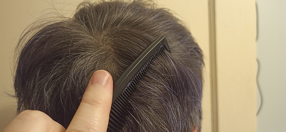 Lice Treatment in Belleville, IL