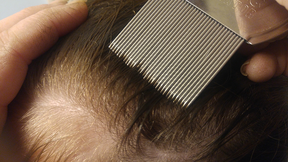 Lice Treatment in Schaumburg and Elgin, IL