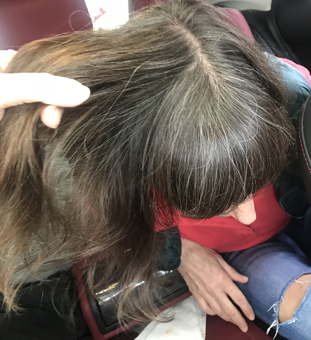 Lice Treatment in New Haven, CT