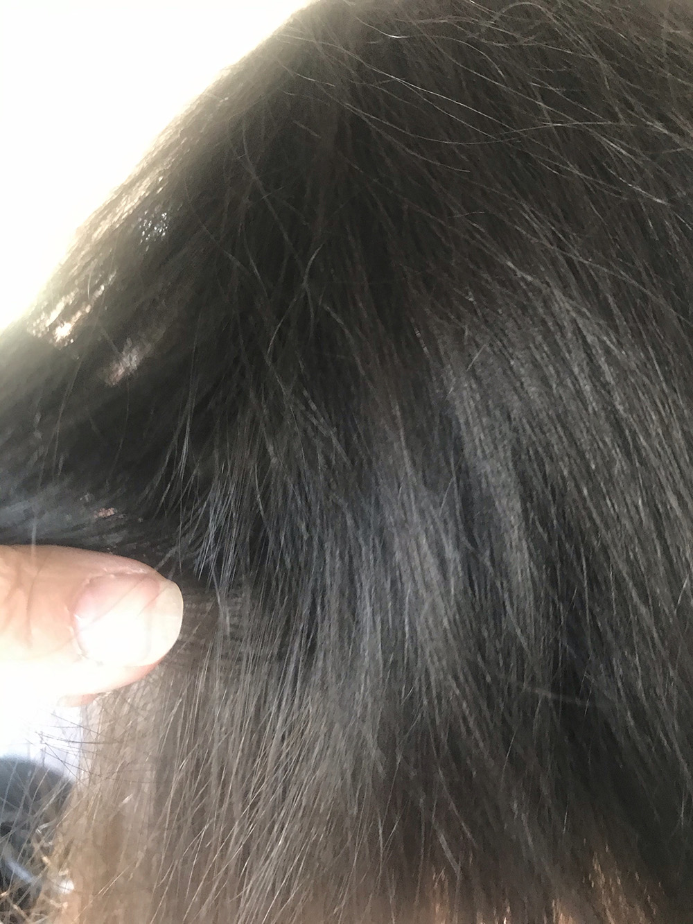 Lice Treatment in Passaic and Morris counties, NJ