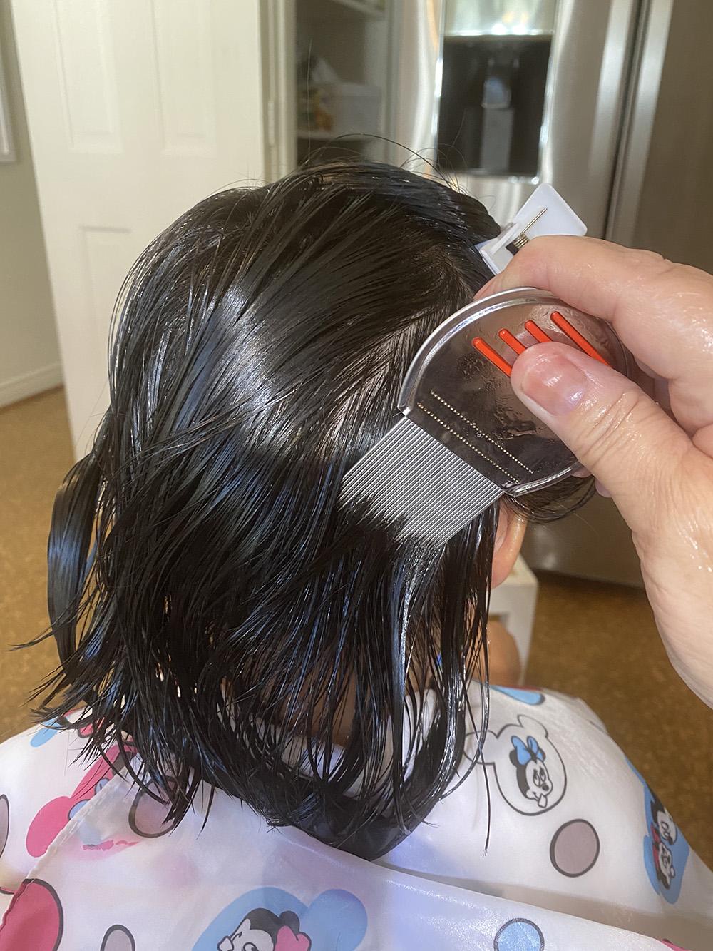 Lice Treatment in Racine, Wisconsin