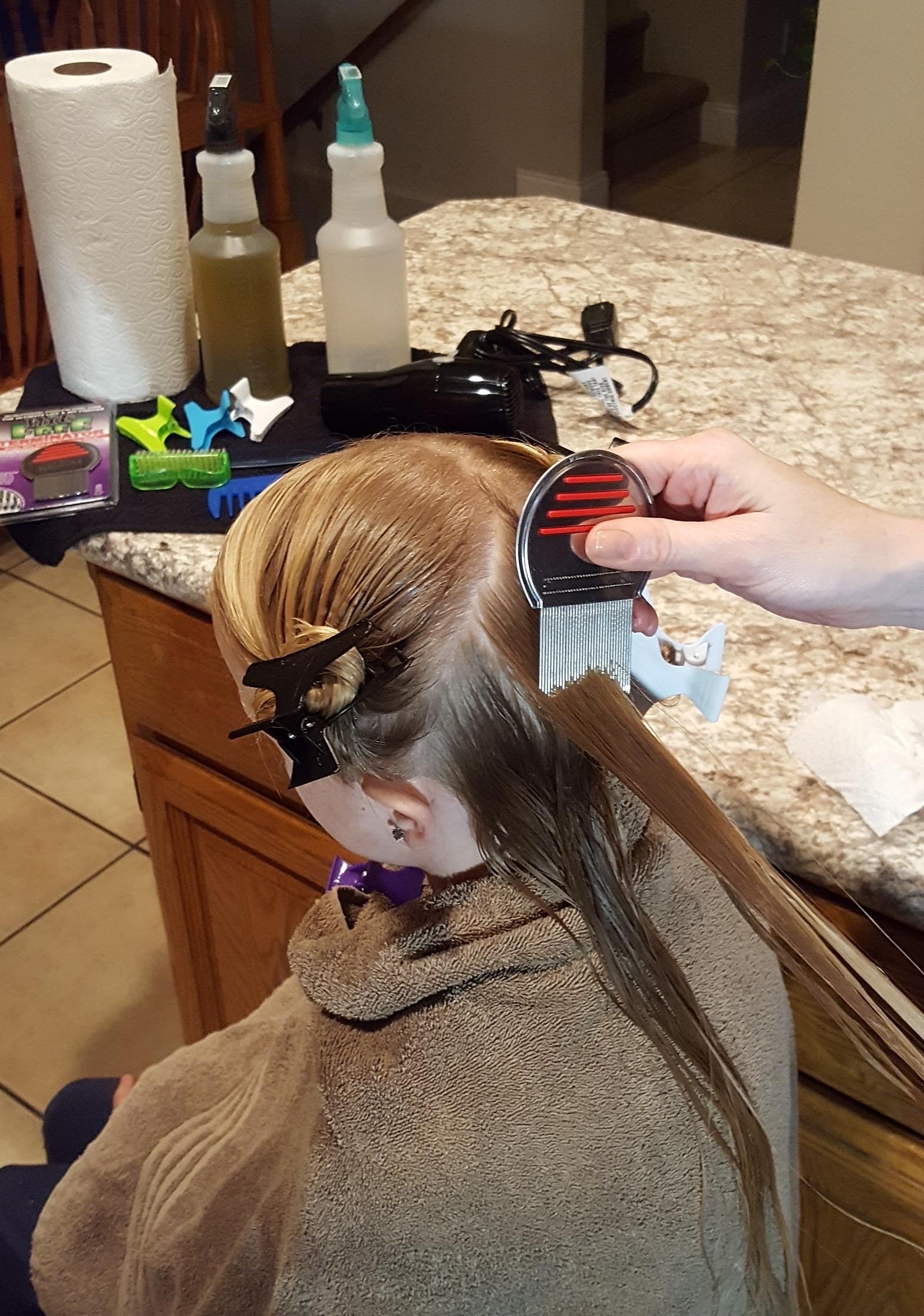 Lice Treatment in Naperville, IL