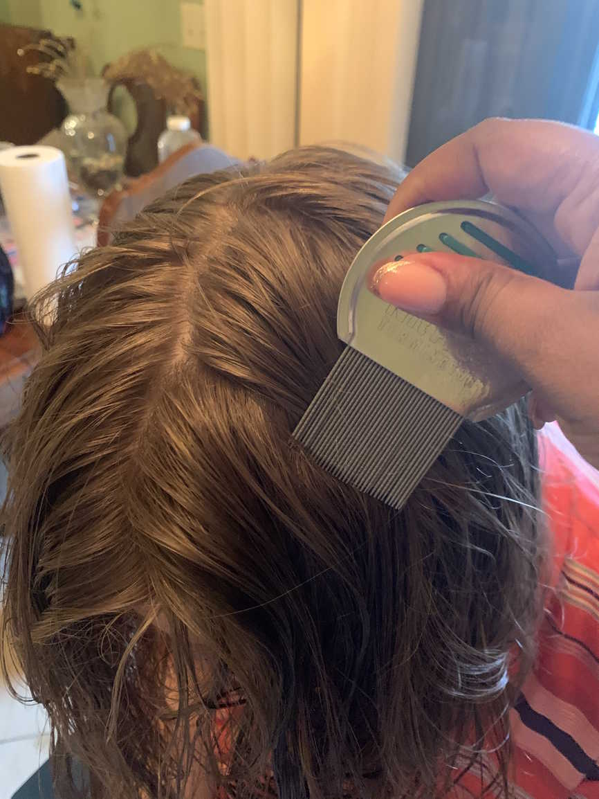 Lice Treatment in Greenville, SC