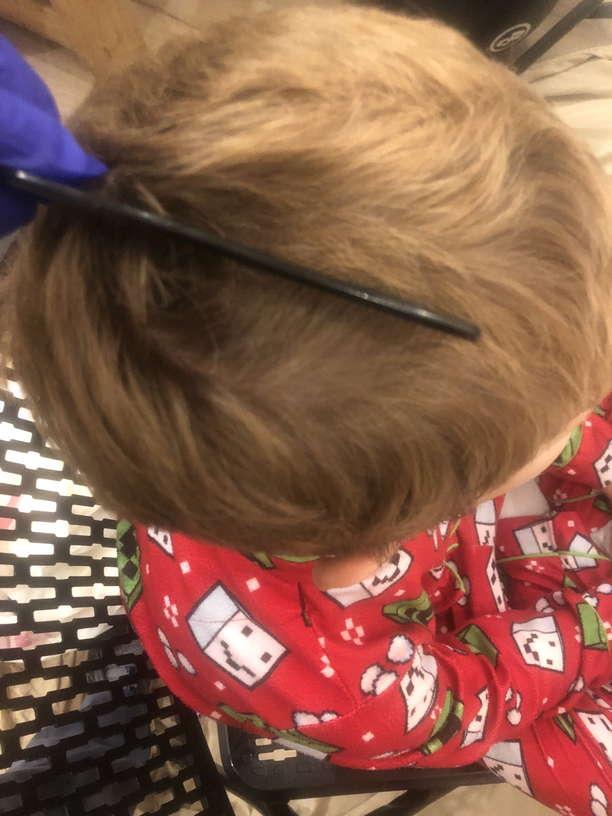 Lice Treatment in Suffolk, VA