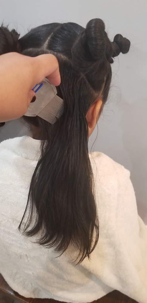 Lice Treatment in Solano County, CA