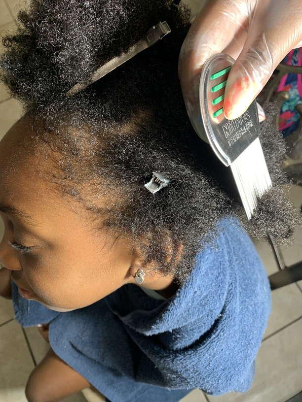 Lice Treatment in Riverside, CA