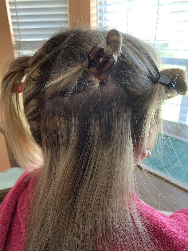 Lice Treatment in Roswell and Alpharetta, Georgia