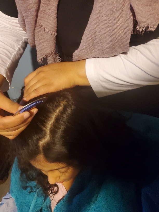 Lice Treatment in Stockton, CA