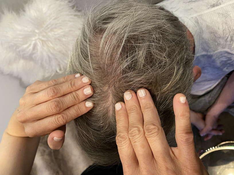 Lice Treatment in Farmington Hills and West Bloomfield, MI