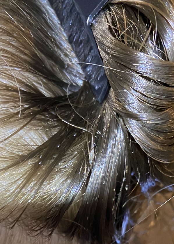 In-home lice treatment in  Indianapolis, IN