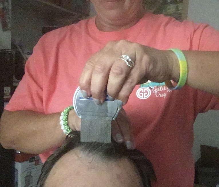 Lice Treatment in Tulsa, OK