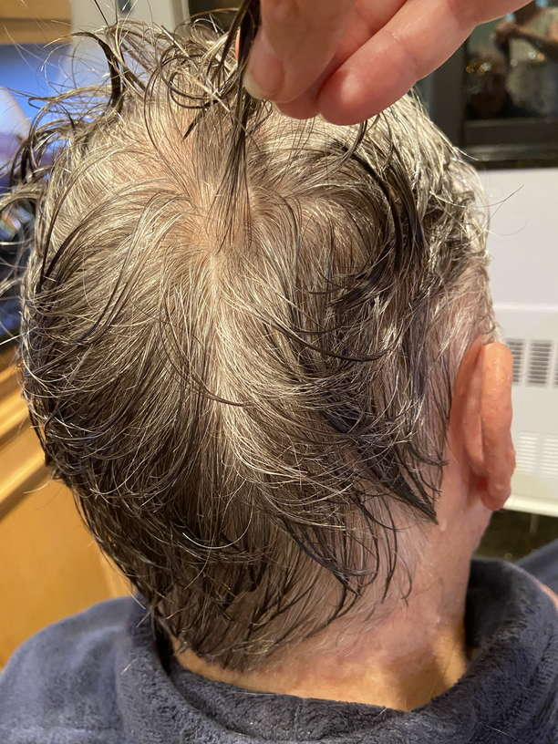 Lice Treatment in Victorville and Apple Valley, CA
