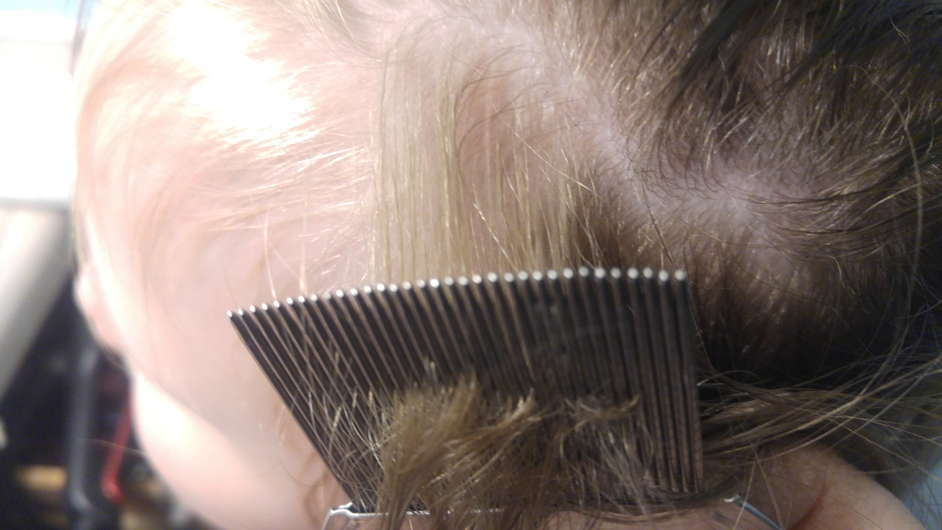 Lice Treatment in Vernon Hills and Palatine, IL