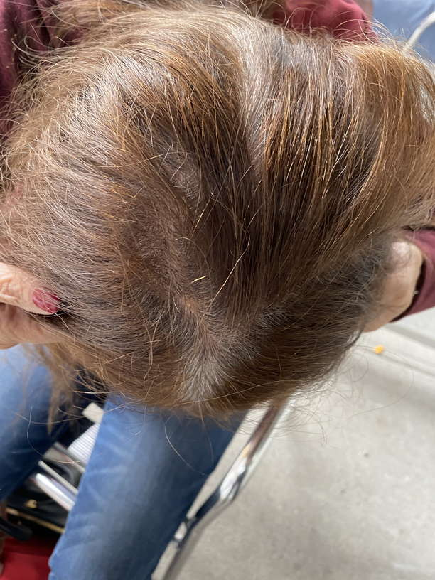 Lice Treatment in Simi Valley, CA