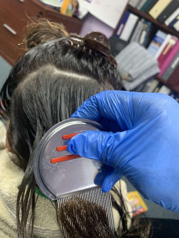 Lice Treatment in Fort Lauderdale, Florida
