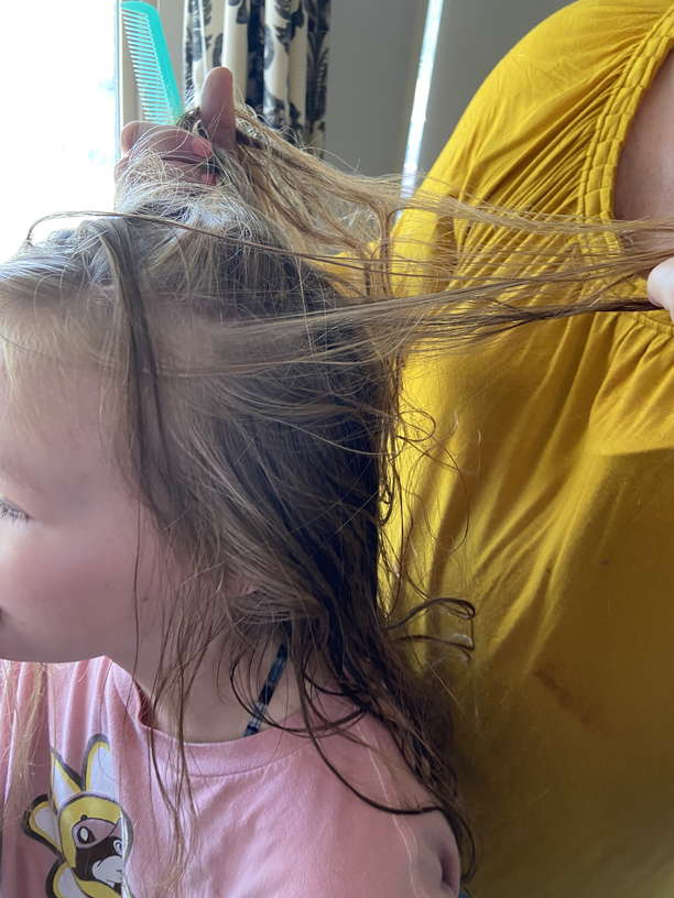 Lice Treatment in Leesburg, Herndon, and Reston, VA