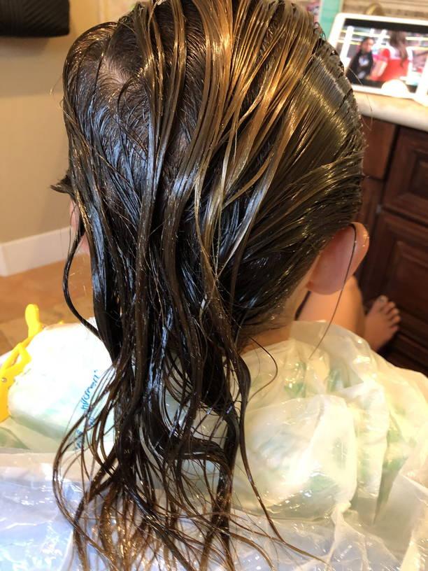 Lice Treatment in Berwyn, IL