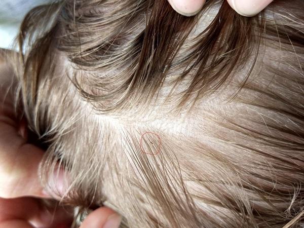 What Does Lice Look Like in Dark Hair