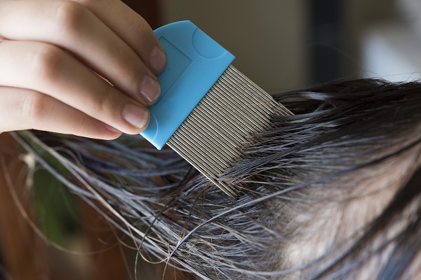 How to Identify Lice