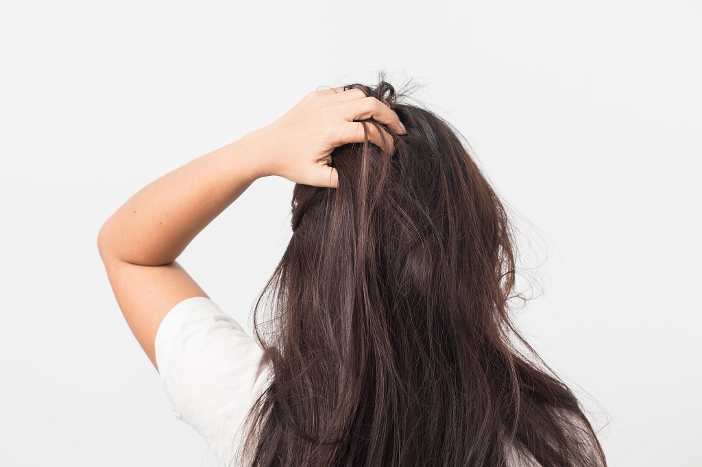 Dry Scalp after lice treatment