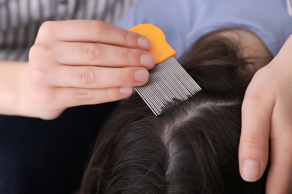 Lice Removal Technique