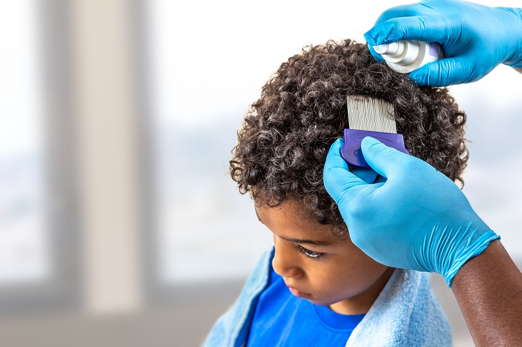 How Contagious is Head Lice?
