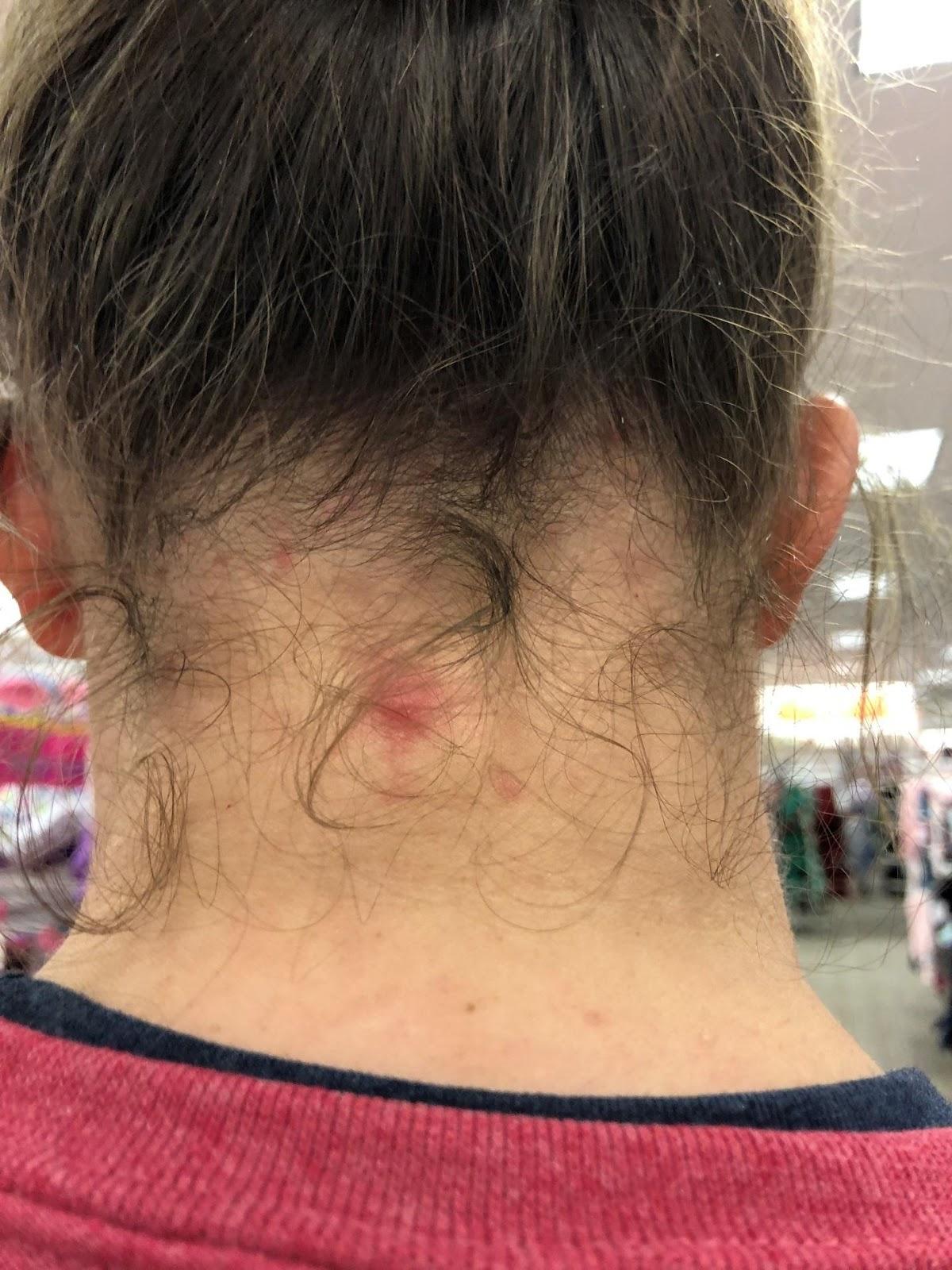 Symptoms of lice bites