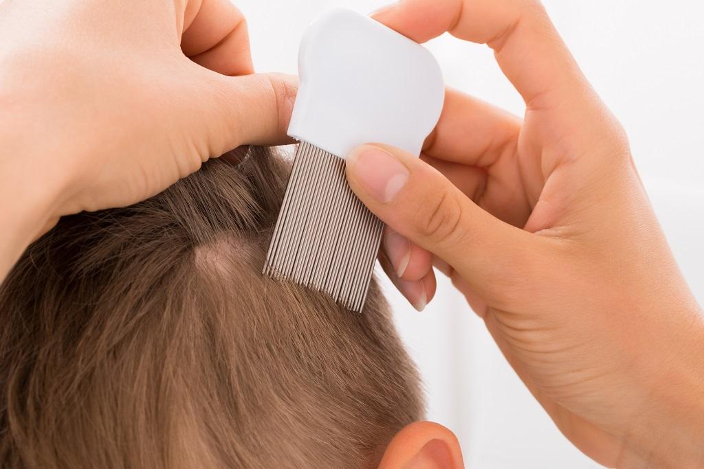 What to Do If My Newborn Baby Has Lice?