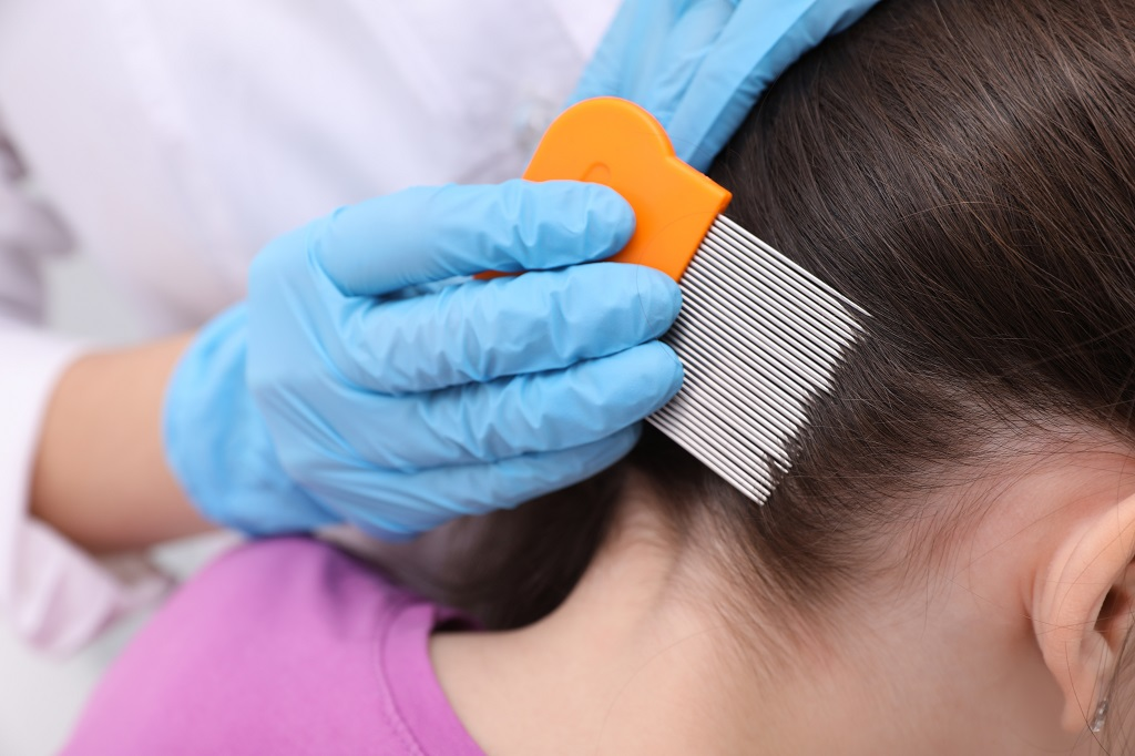 How To Use Lice Comb: Wet Combing Step-By-Step Instructions