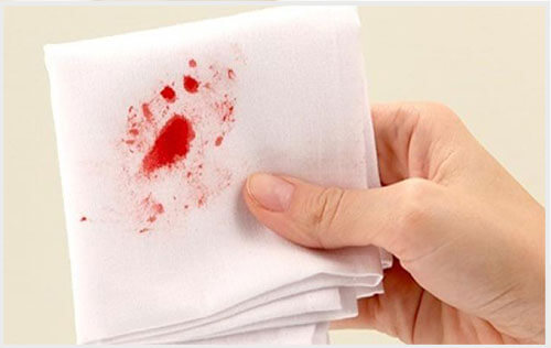 Đi ngoài ra máu sau cắt trĩ