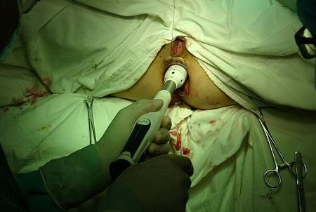 Chảy máu hậu môn sau mổ trĩ là do bệnh tái phát lại