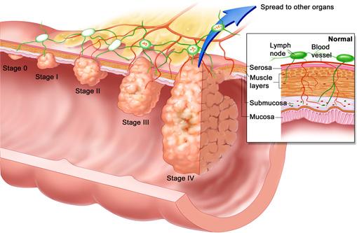Biểu hiện bệnh polyp hậu môn
