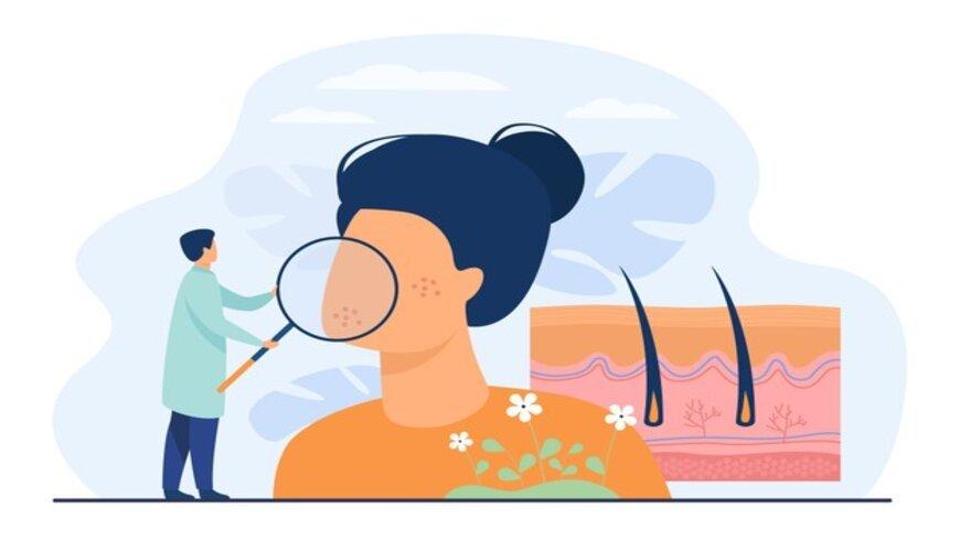 phân biệt da nhạy cảm và da dị ứng