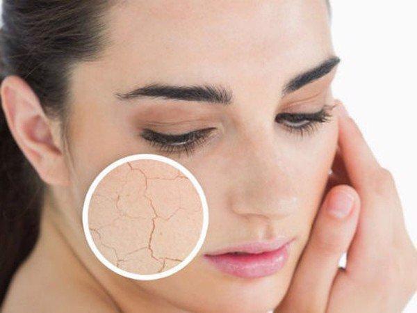 Mỹ phẩm Ricskin - Kohinoor chia sẻ 3 dấu hiệu cho thấy da mặt đang thiếu ẩm trầm trọng - 2