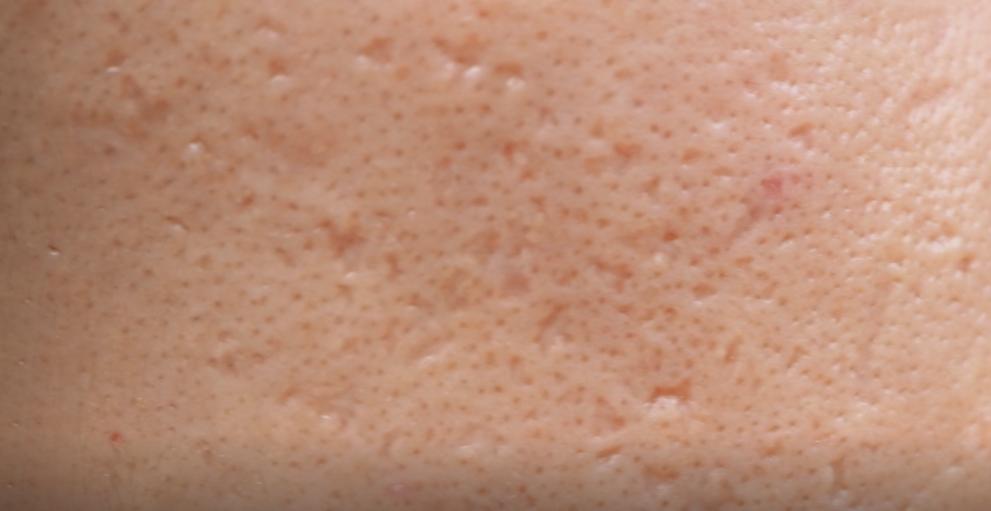 DemarkQ-acne-scars