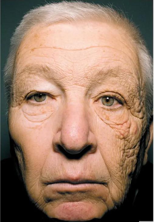 long-term-sun-damage