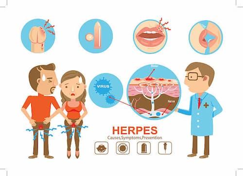 Bệnh giang mai: Dấu hiệu, nguyên nhân, điều trị, hình ảnh, phòng tránh | sức khỏe