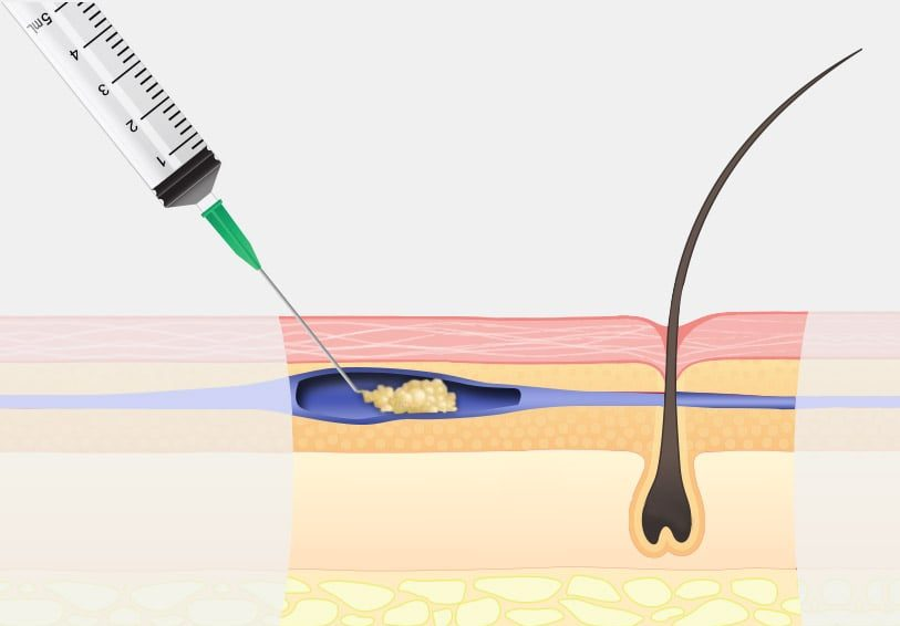Micro Sclerotherapy