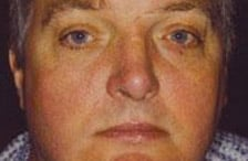 Dr Newmans Clinic - Facial Redness