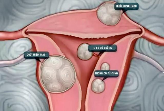 Phụ nữ cần biết các nguyên nhân gây ra u xơ tử cung
