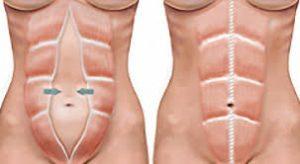 Diástase abdominal não ocorre apenas no pós-parto
