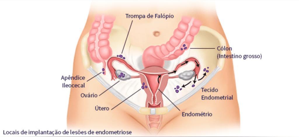 O que é endometriose profunda intestinal e qual o tratamento