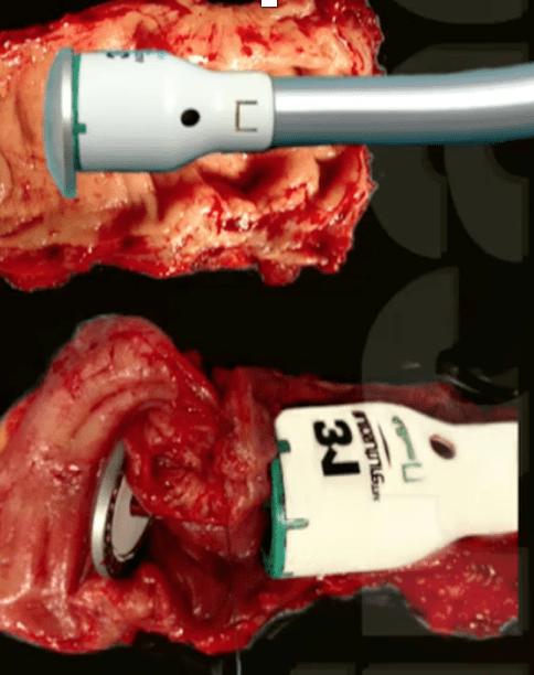 Quais os tipos de cirurgia para endometriose profunda intestinal2